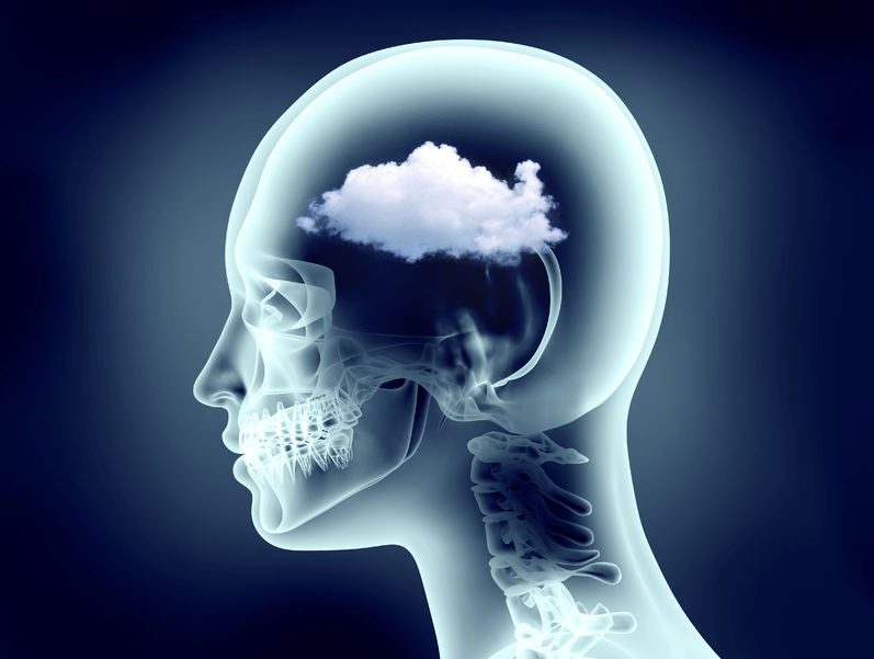 x-ray image of human head with cloud representing thyroid brain fog