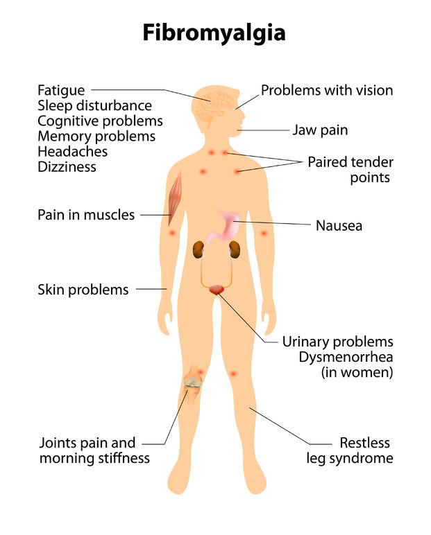Hypothyroidism And Fibromyalgia Thyroid Advisor