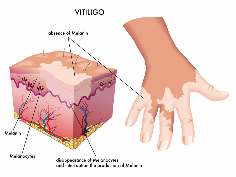 thyroid vitiligo