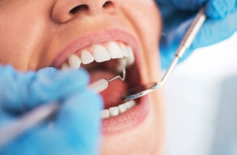 Can Dental Work, Such as Fillings, Lead to Thyroid Issues?