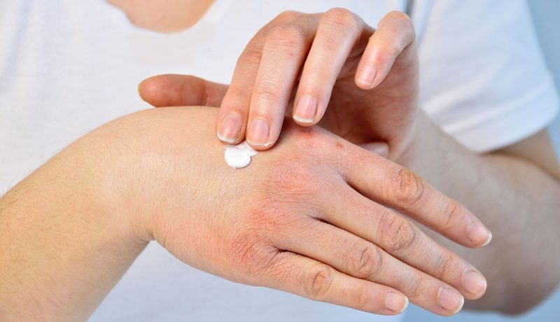 Could Thyroid Problems Cause Skin Rashes?