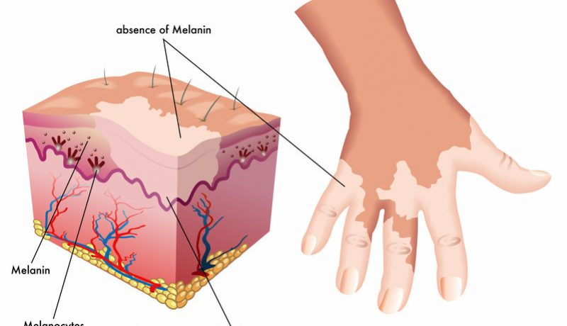 Is There A Connection Between Autoimmune Thyroid Diseases And Vitiligo?