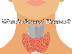 What is Graves' Disease?